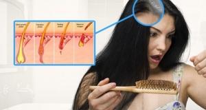 Saçlar neden dökülür